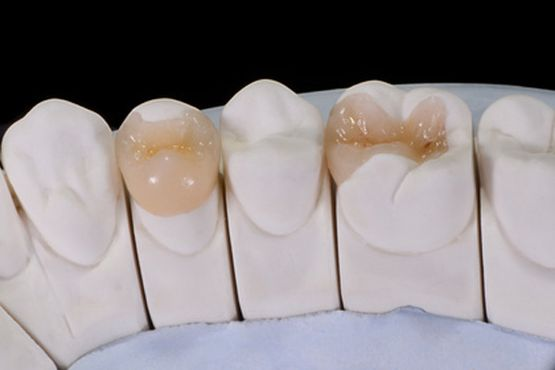 Dental Shape Bremen Onlays