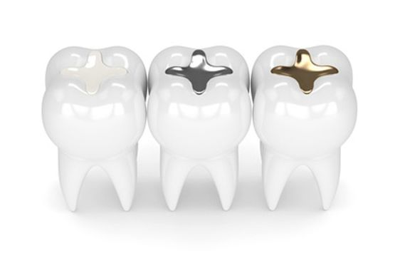 Dental Shape Bremen Inlays